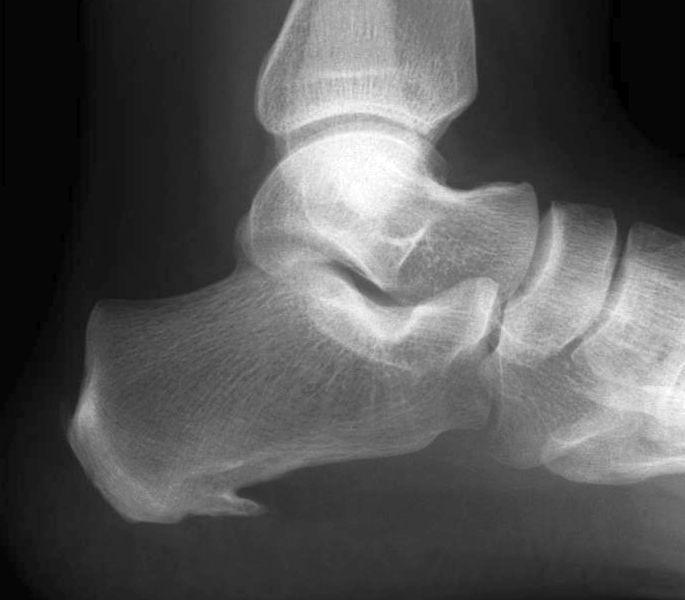 foot and ankle radiology christman pdf