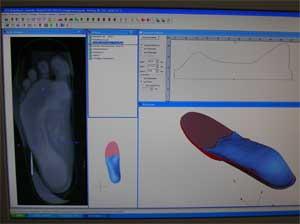 nerven gesteuerte prothesen